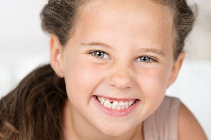 Grosse zahnlücke zwischen den schneidezähnen
