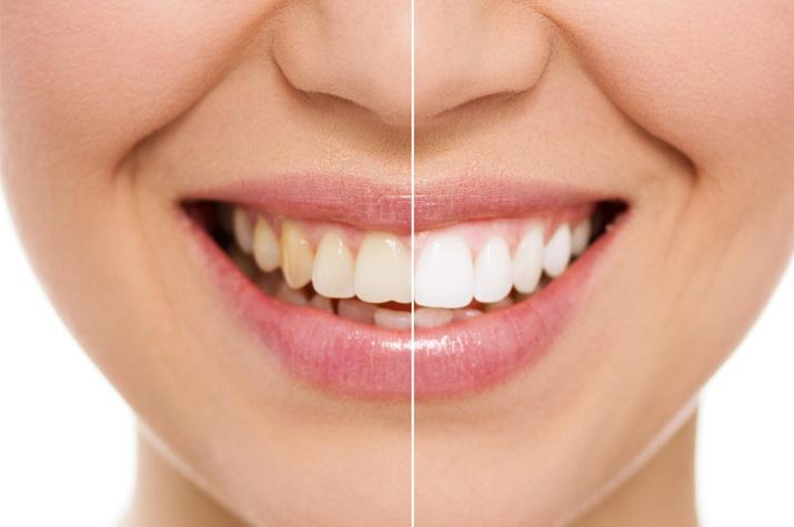 Verfärbungen_an_Zähnen.jpg