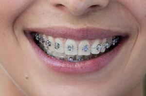 Zahnspange für erwachsene und dating