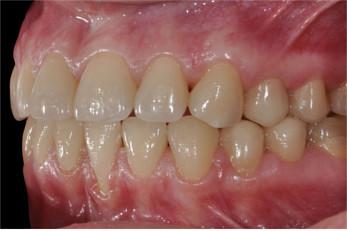 Knirscherzähne