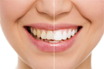 Verfärbungen_an_den_Zähnen
