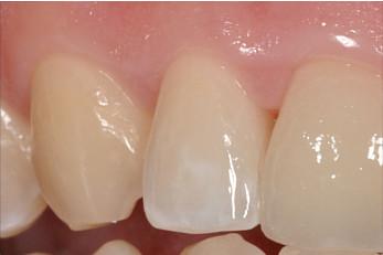 Zahnleischbehandlung