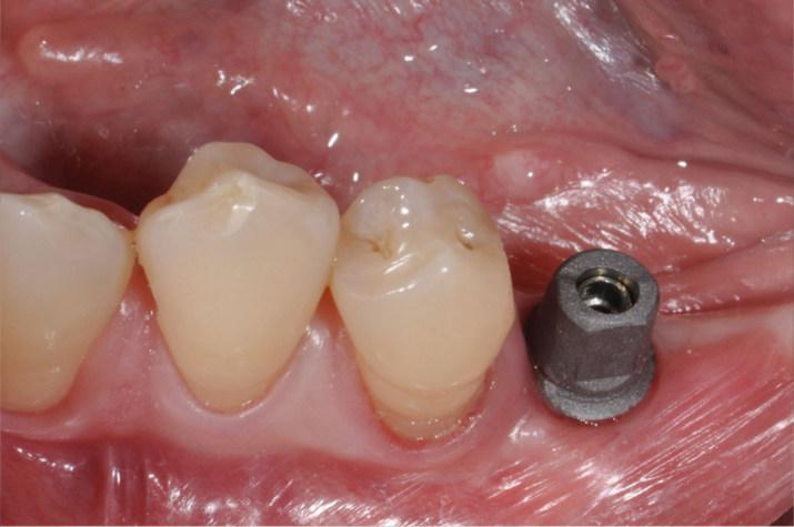 Zahnimplantat mit Aufbau